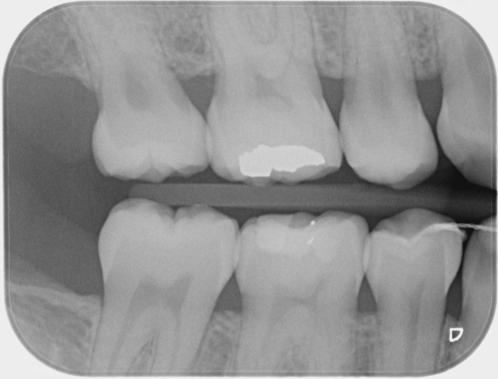 Radiografía bitewing