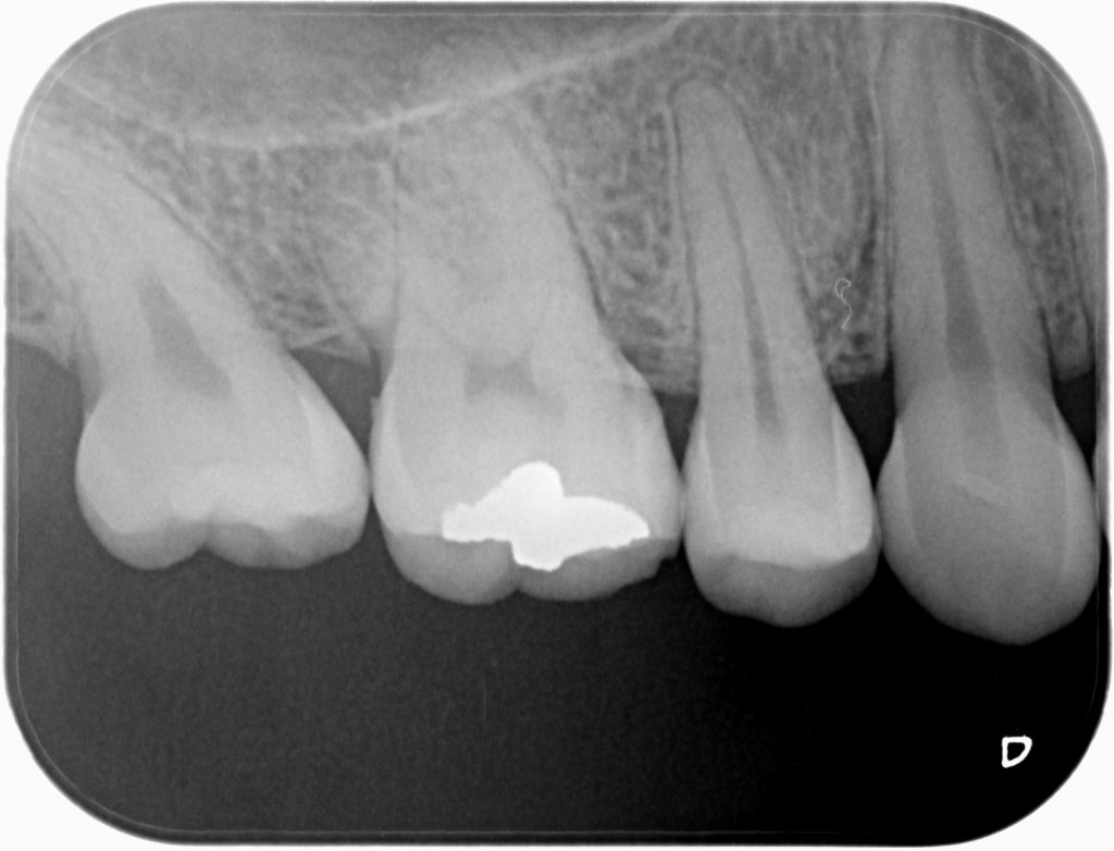 Radiografía Periapical